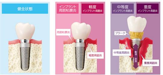 インプラント歯周炎