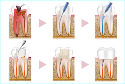 歯の神経の治療(根管治療)