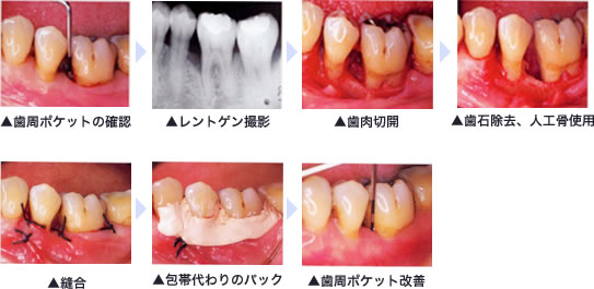 歯周外科手術(重度歯周病の方対象)