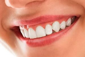 歯ぐきのピーリング